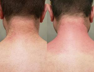 Brooklin Laser Hair Removal 5