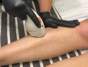 Brooklin Laser Hair Removal 7