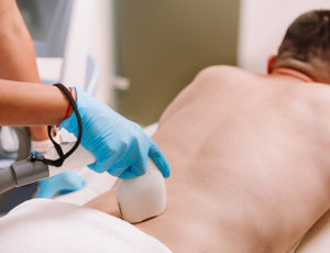 Man getting laser hair removal procedure at beauty clinic