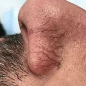 Brooklin Laser Nose 1