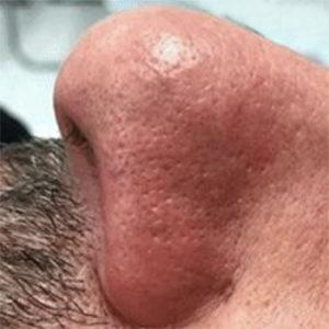 Brooklin Laser Nose 2