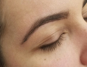 Brooklin Laser Spa Brows 14