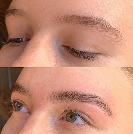 Brooklin Brow Lamination