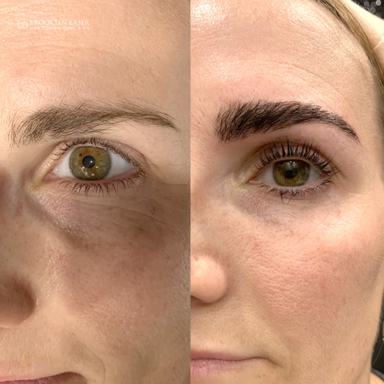 Lash Lift Brow Lamination
