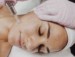 Whitby Micro-Needling Collagen therapy