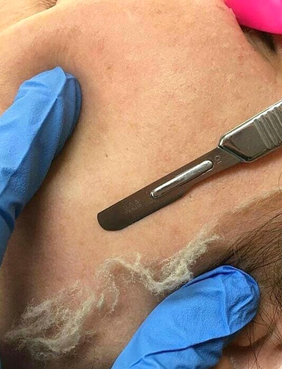 Dermaplaning Whitby