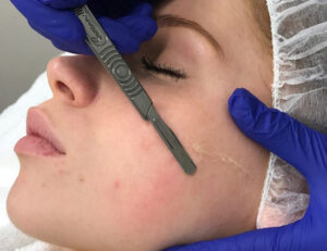 Whitby Dermaplaning Brooklin