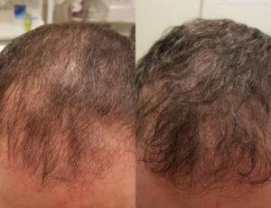 eDermaStamp Hair 07