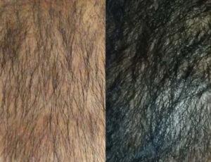 eDermaStamp Hair 08