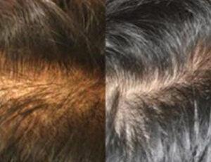eDermaStamp Hair 09