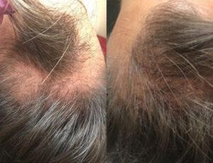 eDermaStamp Hair 10