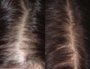 eDermaStamp Hair 11